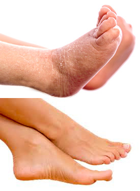 Do You Want A Cure For Dry Feet And Ankles?